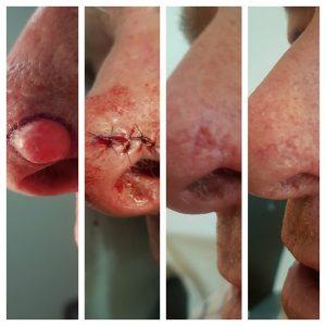 Basaalcelcarcinoom
